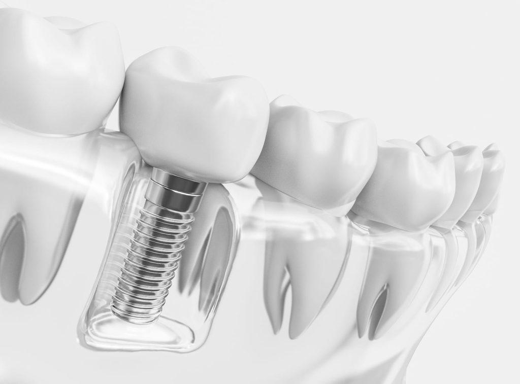 Clínica Dental Feito Bárcena